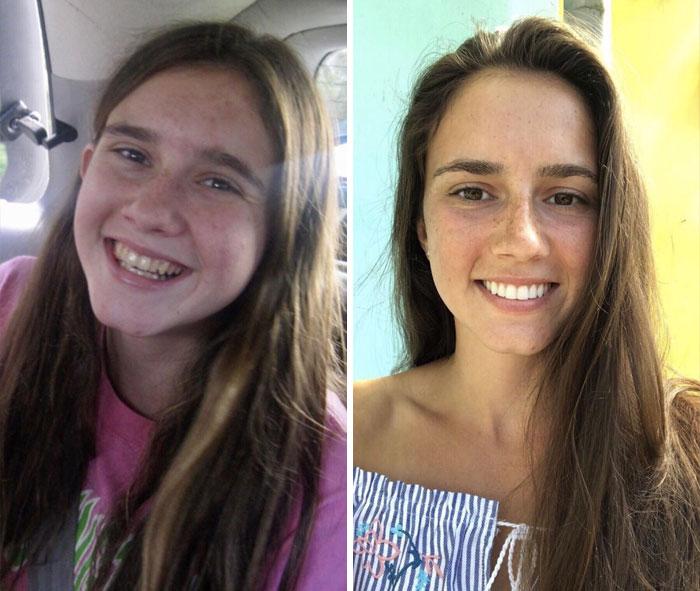 12. 15 - 23 år