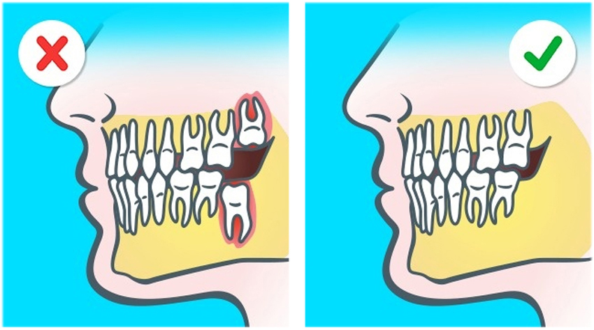 2. Alla människor idag har inte visdomständer. Våra käkar och tänder är mindre än våra förfäders.