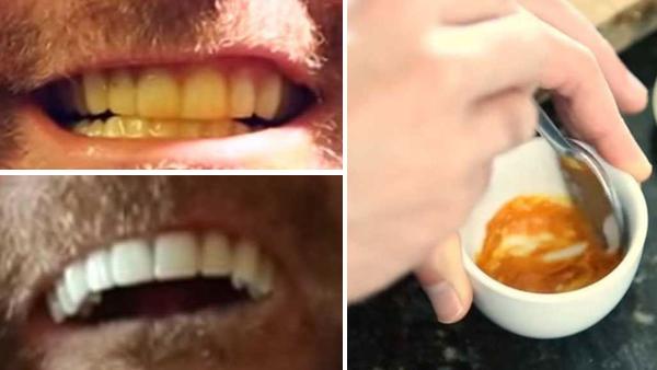 Hur du får vitare tänder med ett löjligt enkelt knep - endast 3 ingredienser från köket räcker
