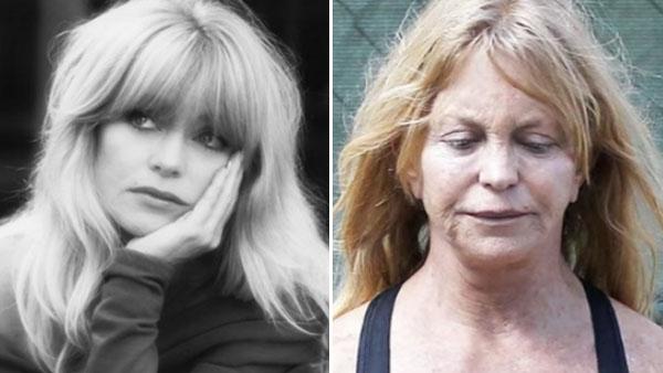 15 kändisar som åldrats på ett hemskt sätt - det här är ju riktigt illa