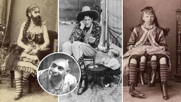 10 mycket ovanliga människor som blev cirkusattraktioner