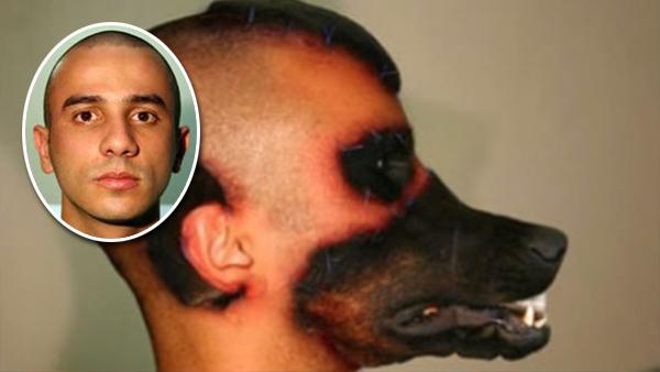 10 personer som gjorde extrema operationer och förändrade sitt utseende fullständigt